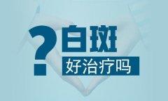 昆明白斑病专科医院:嘴唇上的白癜风容易治吗?