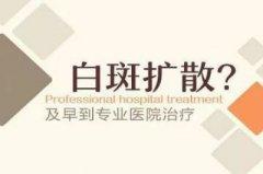 云南白斑医院:白癜风长时间不治疗会扩散吗?